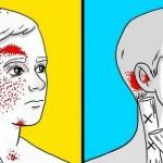 bolovi-glave