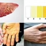 ostecena-jetra-simptomi