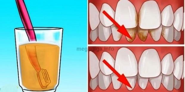 zubi-kamenac