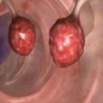 karcinom-debelo-crijevo