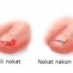 urasli-nokat
