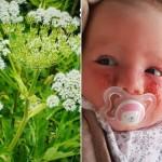 Beba dobila opekline od cvijeta, mama upozorila druge na oprez